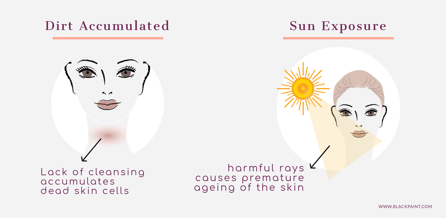 Dirt accumulation and sun exposure increases risk of neck wrinkles