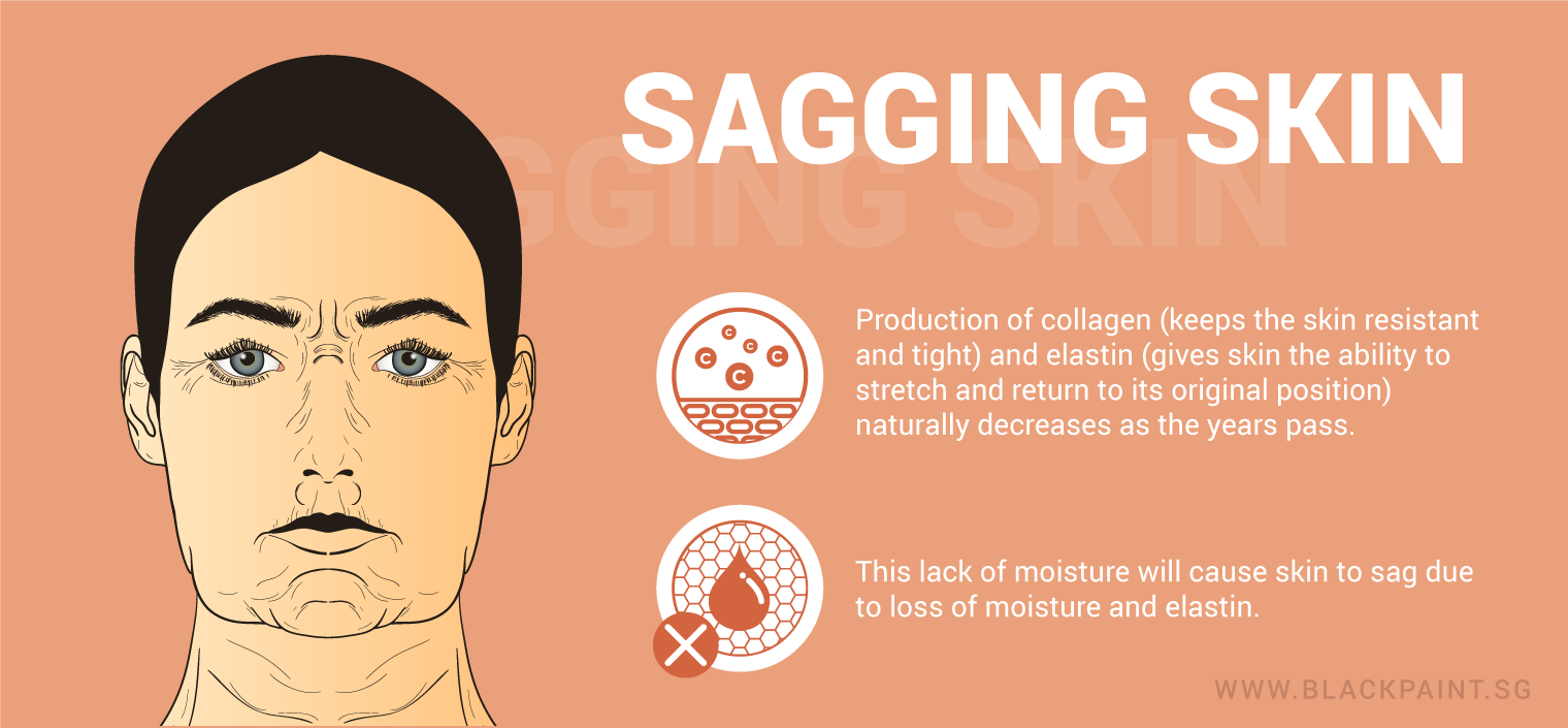 illustration of sagging skin as the result of reduced collagen and moisture in the skin