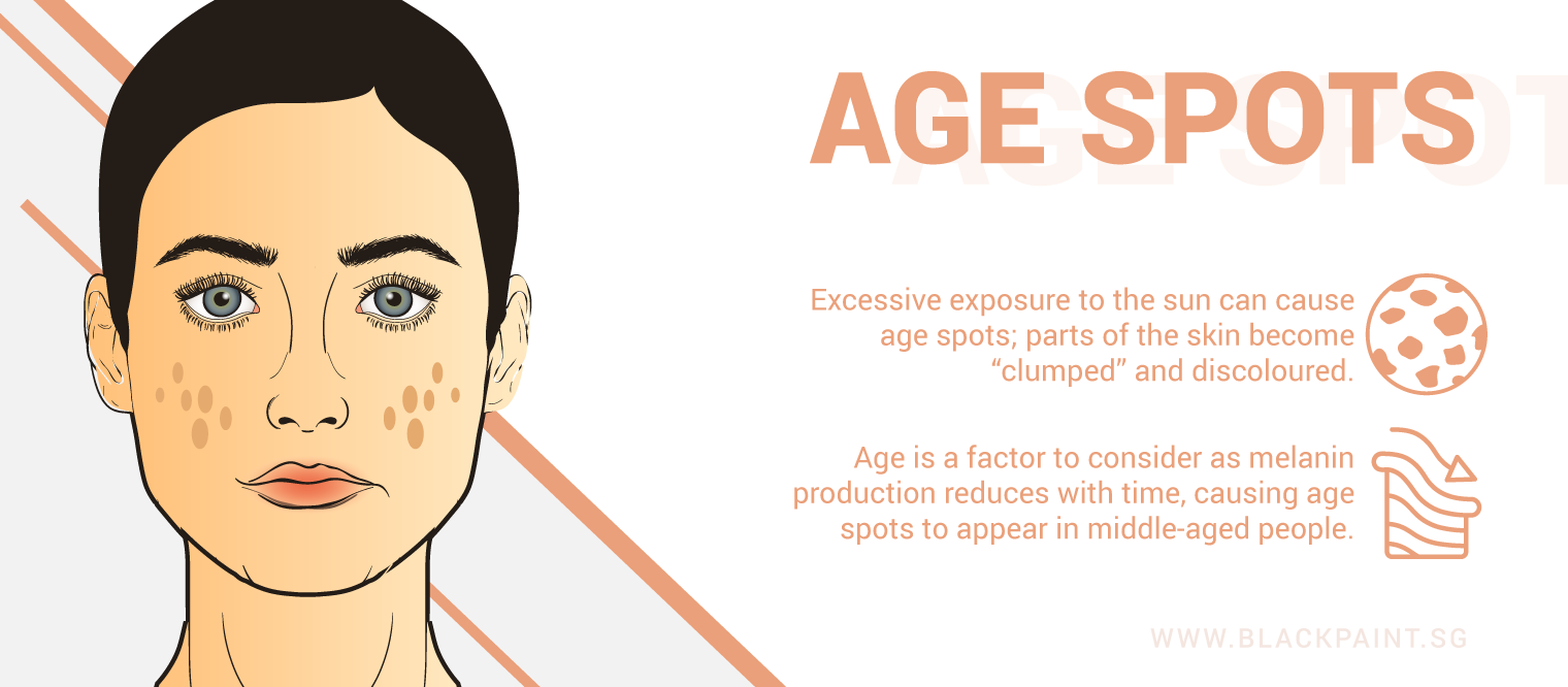 illustration of age spots can happen due to natural aging process, or excessive exposure to sun rays.