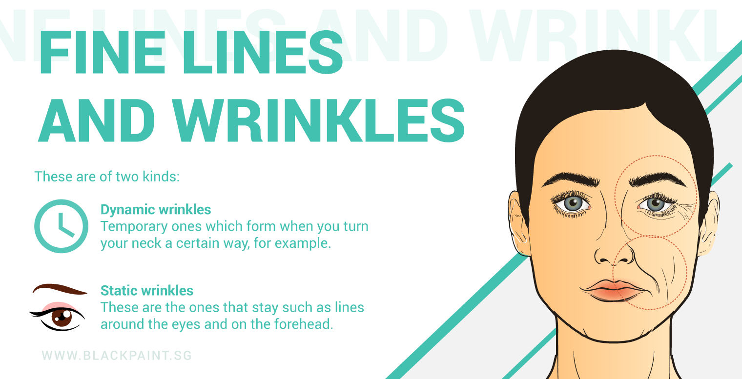 illustration of 2 types of wrinkles that you should know about