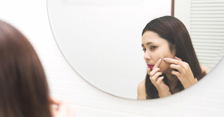 Do not pick at your pimples! Find natural ways to cure it!