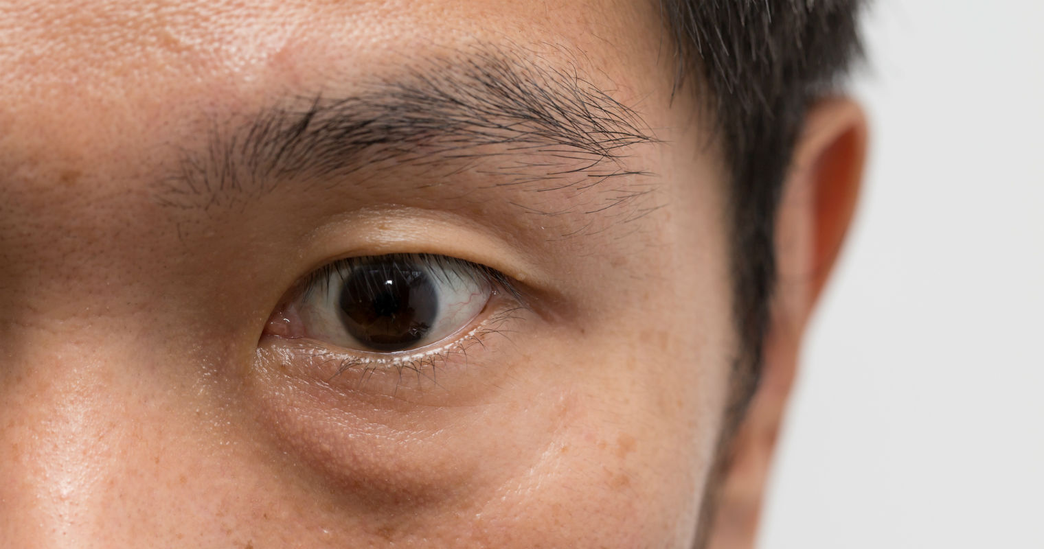 Eye bags can be a result of genetic or lifestyle factors