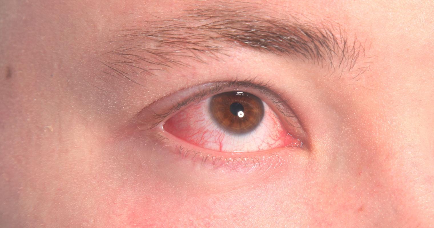 dry eyes or eye irritation caused by rosacea
