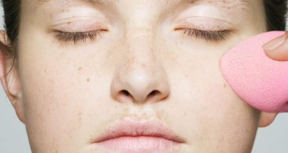 5 Questions About Hyperpigmentation, Answered