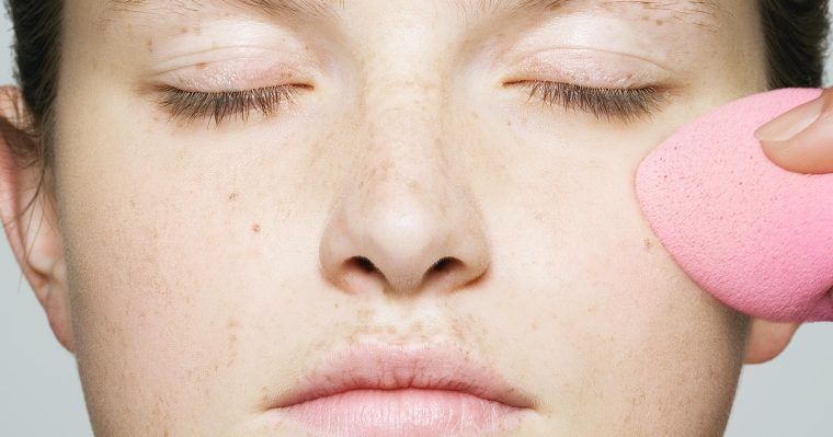 Questions about hyperpigmentation answered