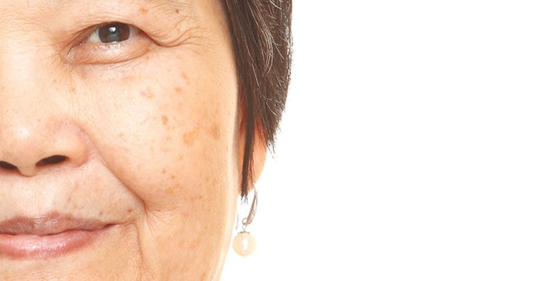 hyperpigmentation and age spots on a woman's face