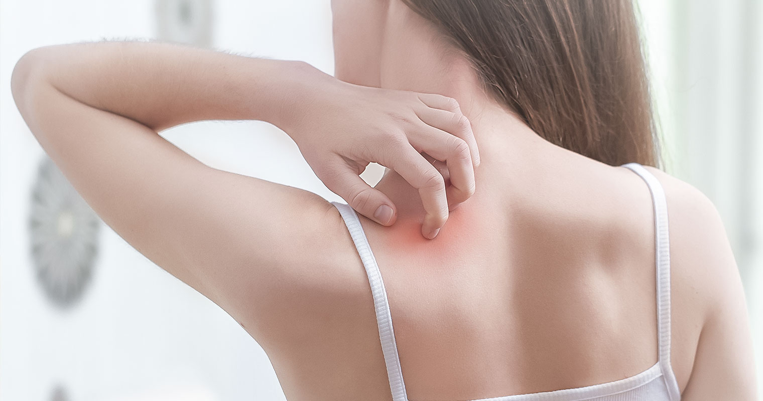 Woman scratching the back of her shoulder with heat rash