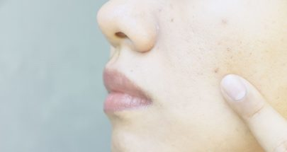 Skin Pores : Clogged & Enlarged Pores Causes and Treatment