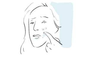 illustration of woman touching her face often causing ACNE