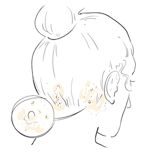 illustration of sweet almond oil helping in reducing scalp acne