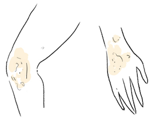 illustration of inflammation on the skin of hand and knee