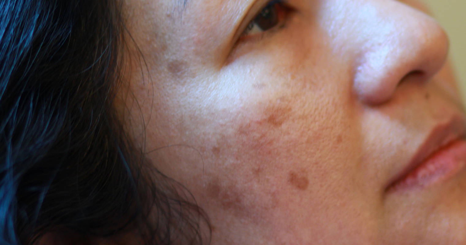 melasma on the right side of a woman's face