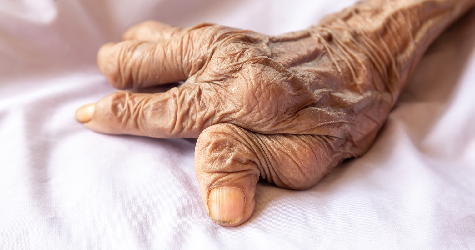 fingers of woman with rheumatoid arthritis