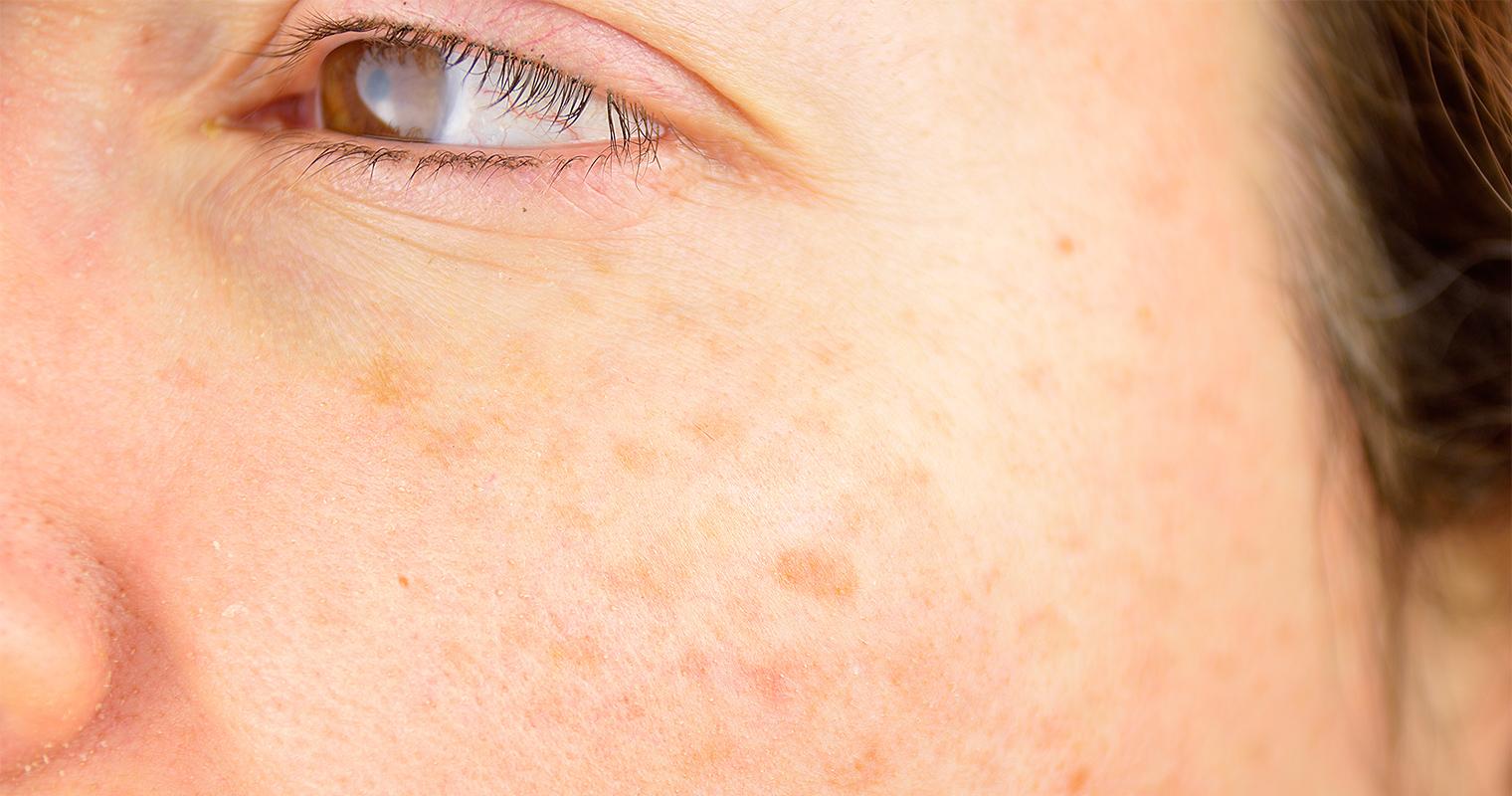 pigmentation on the cheek bone