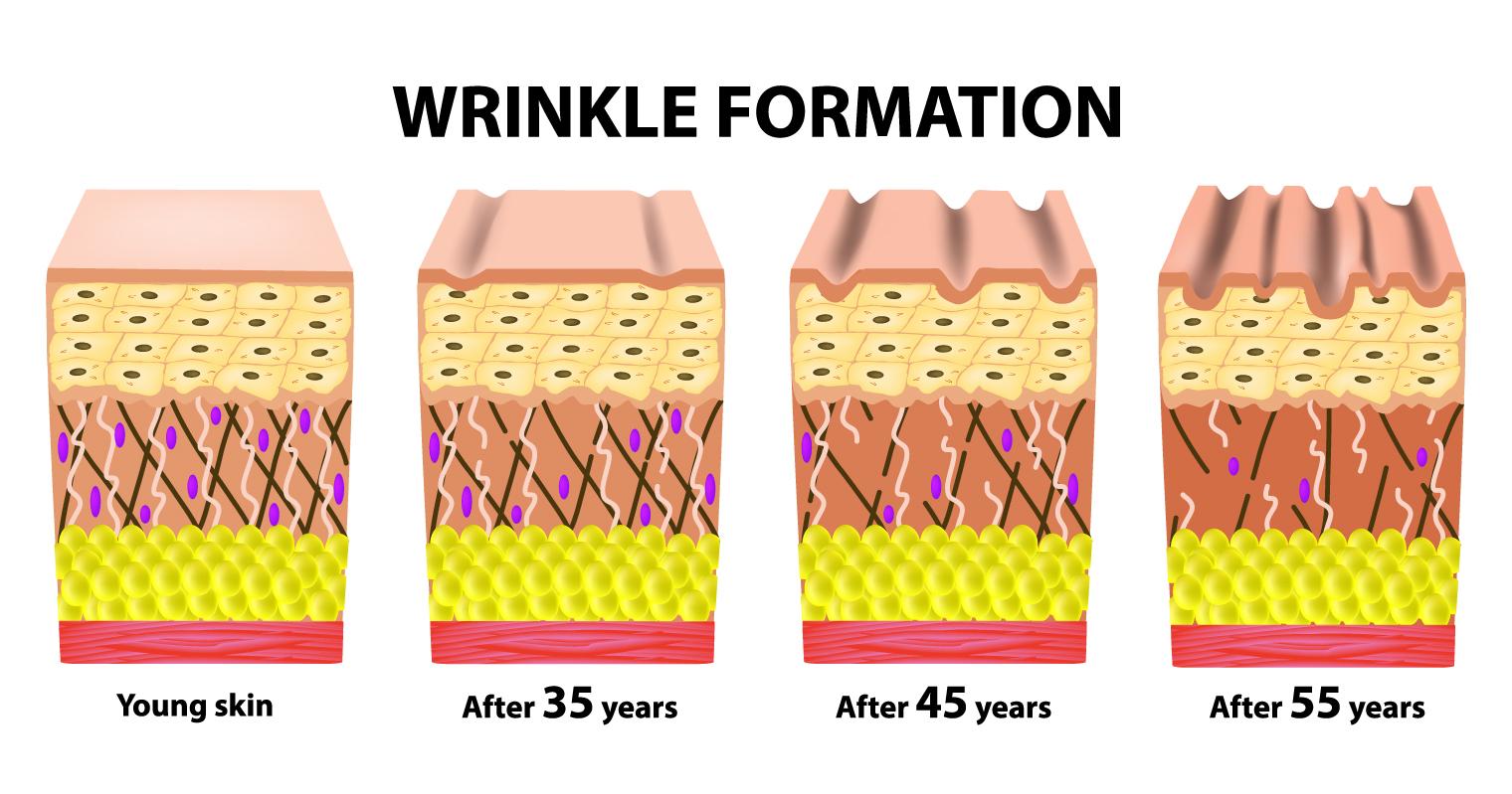 loss of collagen wrinke formation